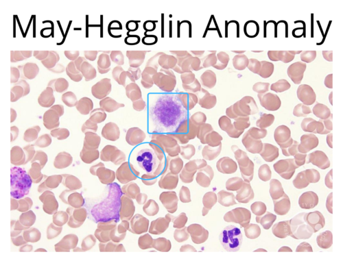 May-Hegglins Disease ResearchDx